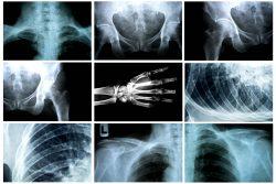 Injury Presumptions